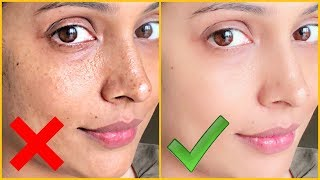 Right Vs Wrong || Hyper-Pigmentation, Dark Spots, Acne Scars || Shruti Arjun Anand