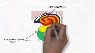 Brain - Hippocampus