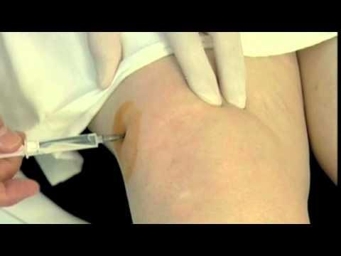Cirugía para dislocación recurrente de la articulación del hombro