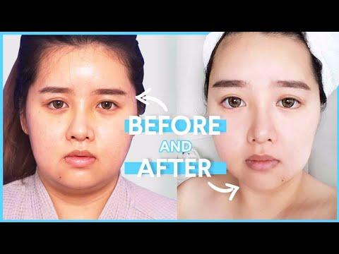 Korean Plastic Surgery Review | Dream Plastic Surgery Clinic