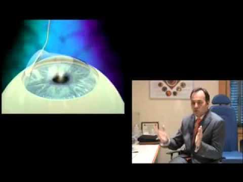Starokachalovskaya casa 10 oftalmologie