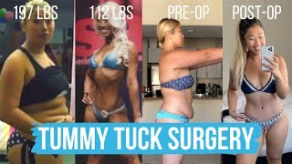 Getting a Tummy Tuck Surgery... should you get one? | Part 1