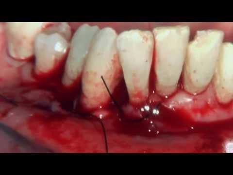 Parodontologi