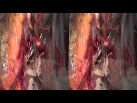 Rekonstrukcja zastawek aortalnych - operacja na otwartym sercu - wideo edukacyjne
