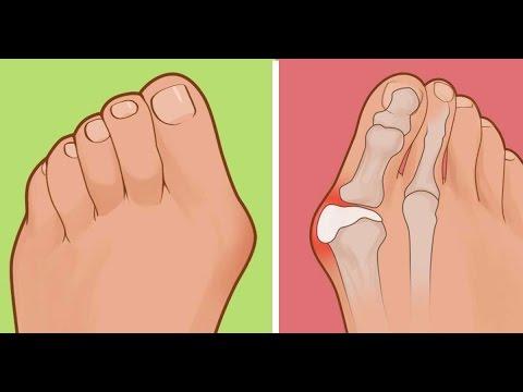 Jak zrobić masaż stóp dziecka w koślawego stóp