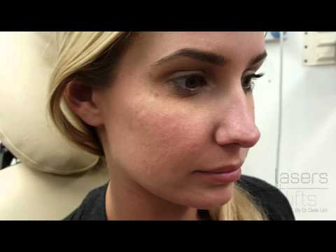 Removing acne scars in 5 minutes