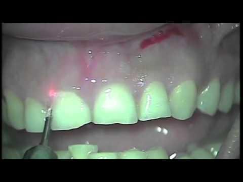 Doctor Smile Dental laser Erbium Yag laser Crown lenghtening