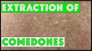 Three patients and their comedones extracted