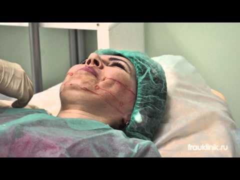 Эффективная маска от мешков под глазами и темных кругов под глазами