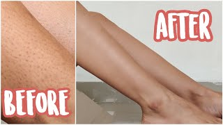 How to get rid of strawberry legs + ingrown hair | my shaving routine
