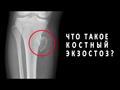 Что такое костный экзостоз?