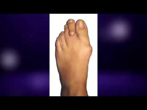 Плоско вальгусная деформация ног