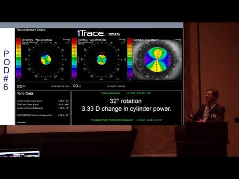 AAO 17 (5) - Dr. Faulkner from the iTrace Users Meeting