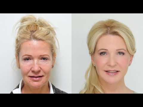 Dermalay proti stárnutí