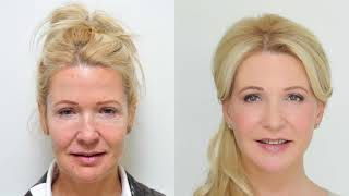 Facelift - Facial rejuvenation at YES VISAGE Clinic