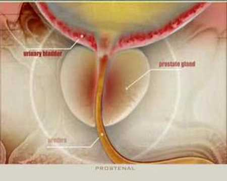 Ab welchem Alter kann Prostatitis erscheinen