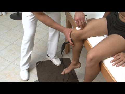 Trattamento di osteoartrite dispositivo
