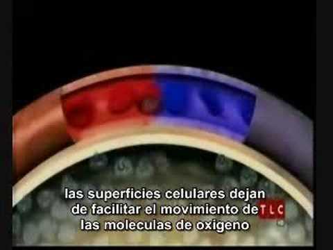 Hipertónica en Inglés