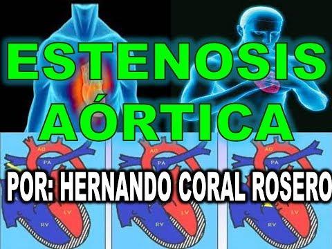 La osteoartritis y la hipertensión