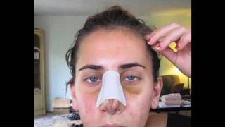 VLog of my Rhinoplasty Surgery, Recovery, #6