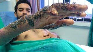 Die besten 100 Videos Unglaublich. Tilapia Fisch-Haut bei Verbrennungen