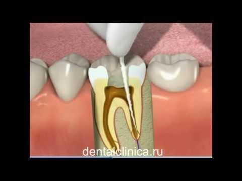 Имплантация протезирование эстетическая хирургия ортодонтия пародонтоз лечебный туризм