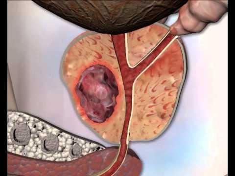 Tratamiento de tratamiento de la HPB de prostatitis