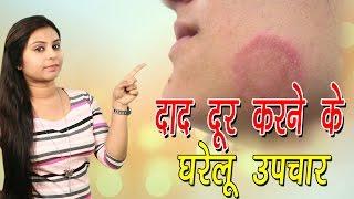 दाद दूर करने के घरेलू उपचार Home Remedies For Ringworm   Daad Ka Ilaj In Hindi - Vianet Health