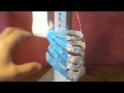 LUngheria heviz trattamento di una spina dorsale