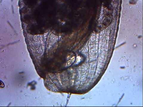 Cal parasep parasito
