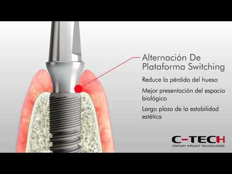 La operación del aumento del pecho en gomele