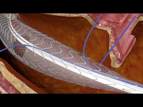 Iniezioni per rafforzare le ossa e le articolazioni