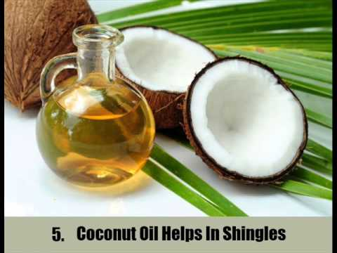 Video 8 Home Remedies For Shingles