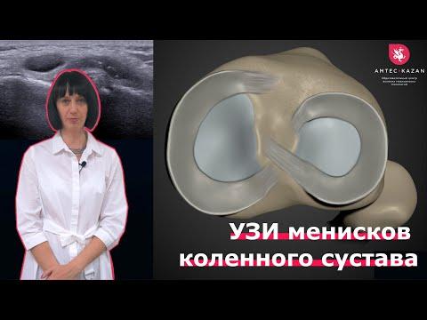 УЗИ менисков коленного сустава