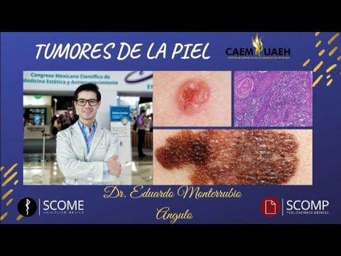 Hpv e cancro alla bocca, Dictionar italiana-romana, Hpv e cancro alla bocca, Papilloma virus cancro