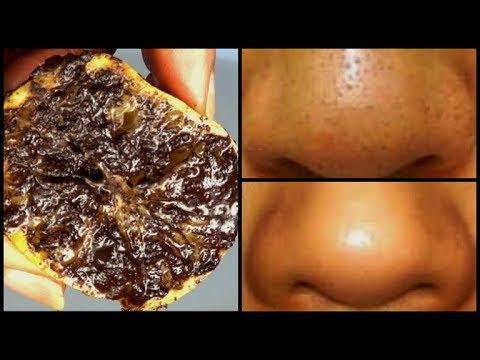 Die Behandlung von der Drosselbeere warikosa