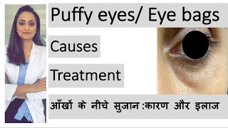 puffy eyes  eye bags   aankhon ke neeche sujan   कारण और इलाज   Dr. Aanchal   dermatologist