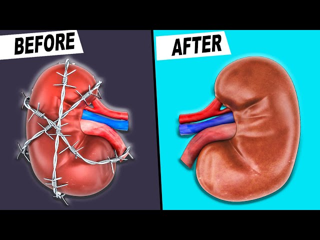 10 Easy KIDNEY Health Tips to Repair Kidney Damage (PERMANENTLY!)