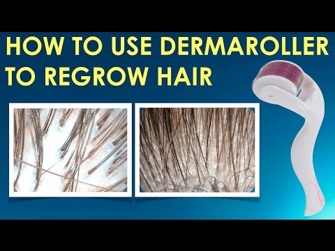 How To Use The Dermaroller To Regrow Hair, Stop Hair Loss And  Grow Hair On Receding Hairline