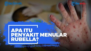 Apa Itu Penyakit Menular Rubella?