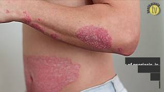 Brain-skin connection in psoriasis pathogenesis strengthened by new study