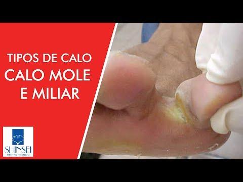 Medicina contra umas pernas de fungo
