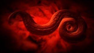 Rat Lung Worm Disease - Monsters Inside Me Ep8