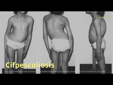 Las articulaciones de la cintura escapular