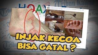 Hoax or Fact: Injak Kecoa Bisa Gatal-Gatal hingga Cacing Masuk Lewat Pori-pori