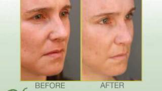 Get Rid of Dark Circles with Blepharoplasty