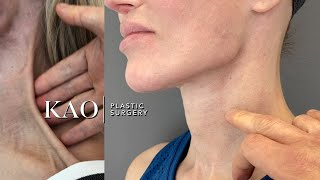 KAO Plastic Surgery - Ponytail Rescue: Ponytail Facelift Fixed Botched Surgery - Before and After