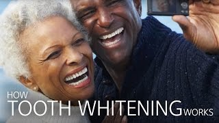 How Does Dental Whitening Work?