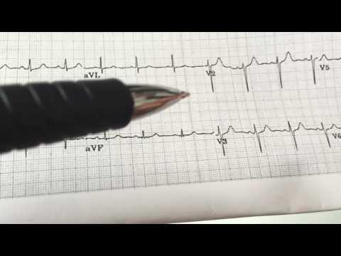 How to determine ECG axis