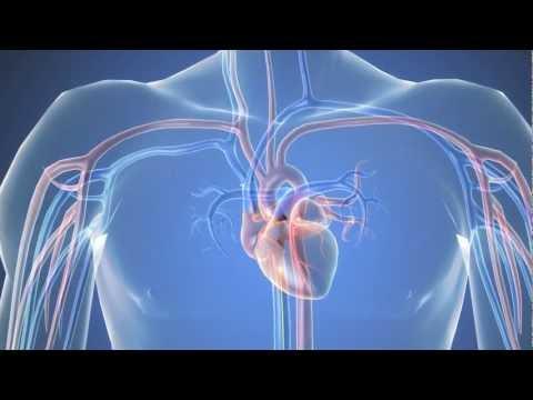 סרטון הדמיה נוסף של פעולת צנתור לב
